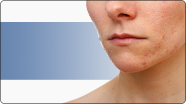 Diseases of the Skin - Dermatology service Greenville, NC